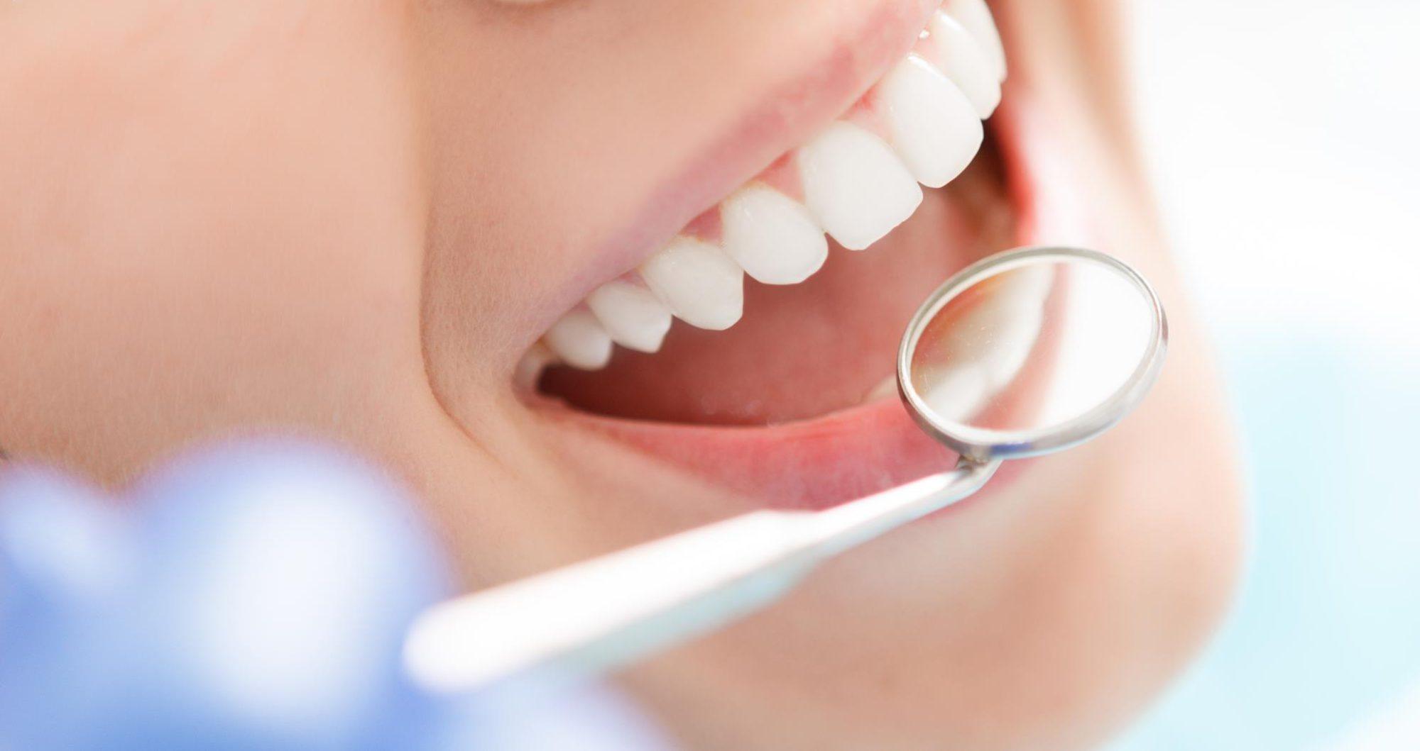 Anne Gyselinck - tandarts